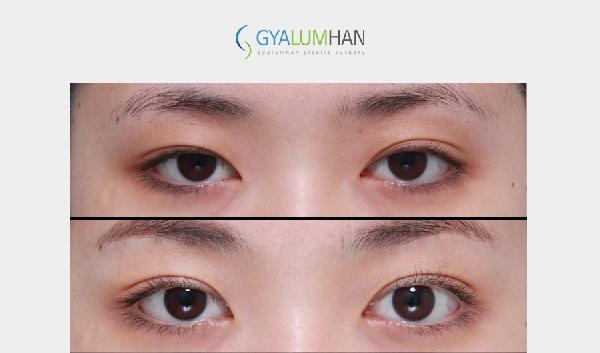 Eye Shape Revision Surgery 이미지