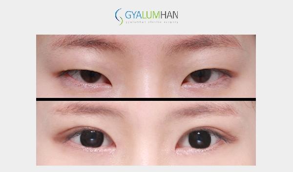 Eye Shape Revision Surgery, Ante.. 이미지