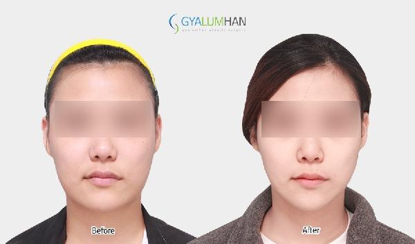 Facial liposuction 이미지