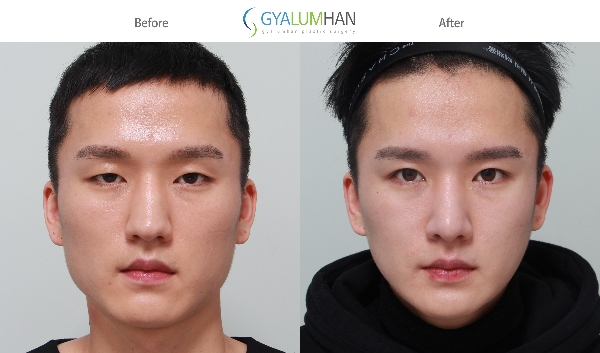 Open Rhinoplasty, Reduction rhin.. 이미지