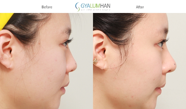 Open Rhinoplasty 이미지