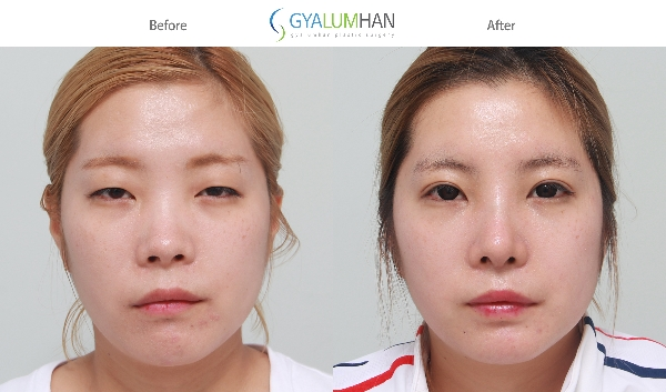 Reduction rhinoplasty 이미지